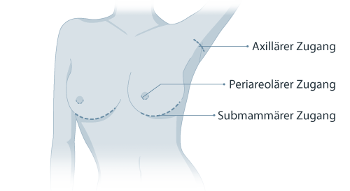 Brustvergrößerung Ablauf   Richrath & Wüst